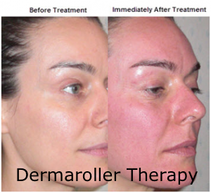 Before and Immediately After Dermaroller Therapy