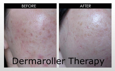 After 3 Treatments with Dermaroller