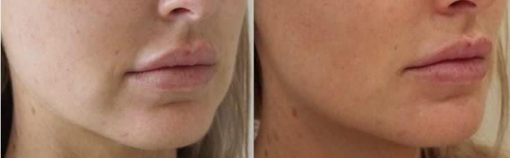 jawline and chin contouring with hyalauronic acid