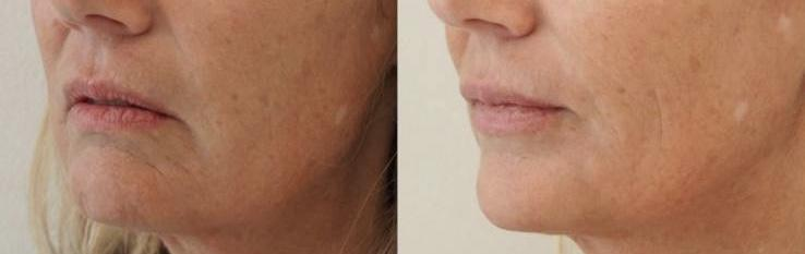 jawline and chin dermal filler with Radiesse