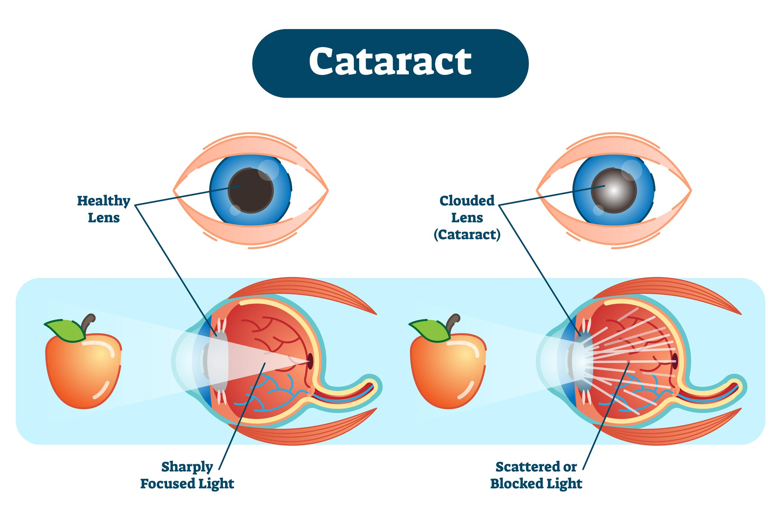 Cataracts and how it affects sight