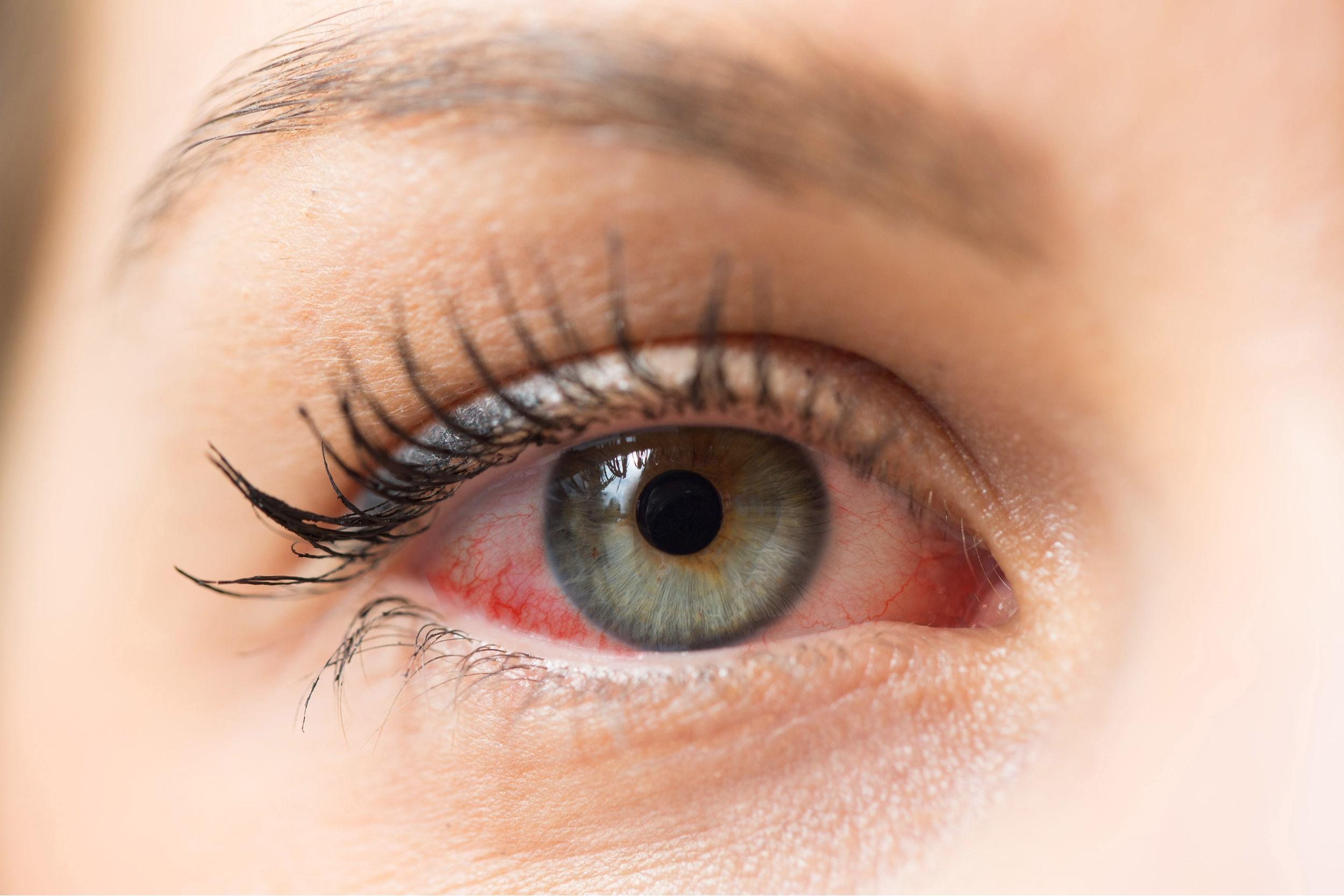 eye allergy
