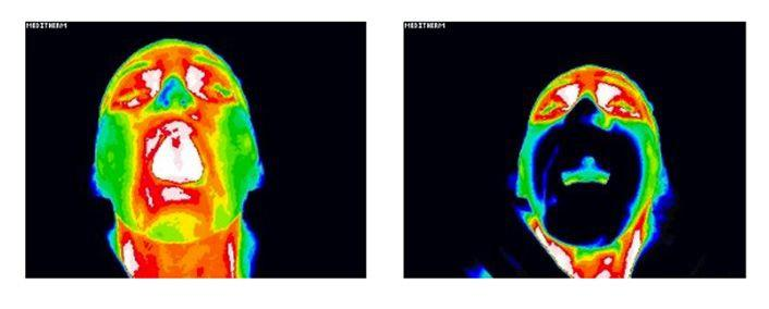img-thermographic-scans.jpg