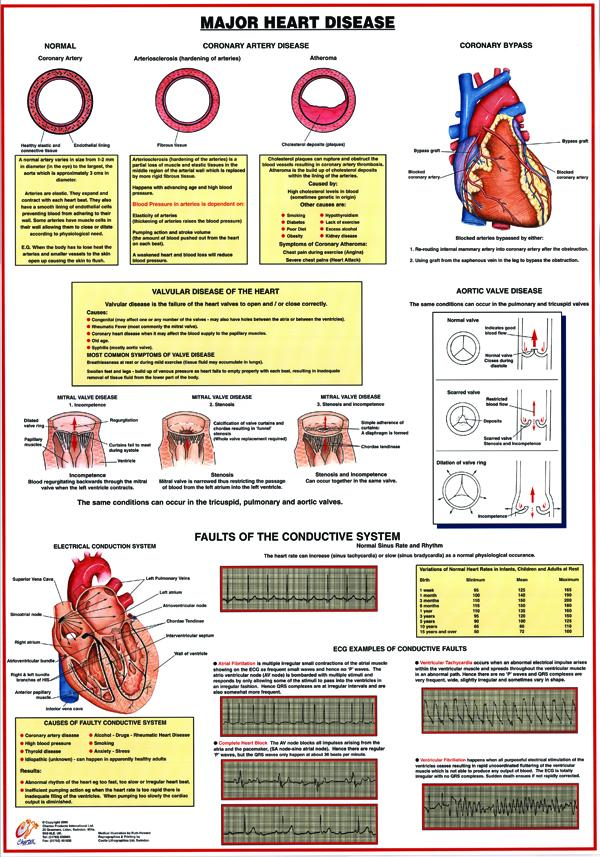Major Heart Disease Chart